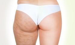 Cellulite, male di stagione: consigli per combattere